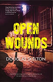Open Wounds (Davie McCall Series Book 4) by [Douglas Skelton]