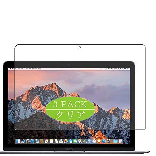 VacFun 3 Piezas Claro Protector de Pantalla, compatible con Apple MacBook 12' 2017, Screen Protector Película Protectora(Not Cristal Templado) NEW Version