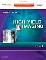 High-Yield Imaging: Chest: Expert Consult - Online and Print, 1e (HIGH YIELD in Radiology)