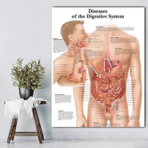 JFHSJ Póster Imágenes del Sistema digestivo Cuadros y Carteles anatómicos Cuadros de anatomía Enfermedades Cuadros de Pared para médicos de educación médica 40 * 60cm