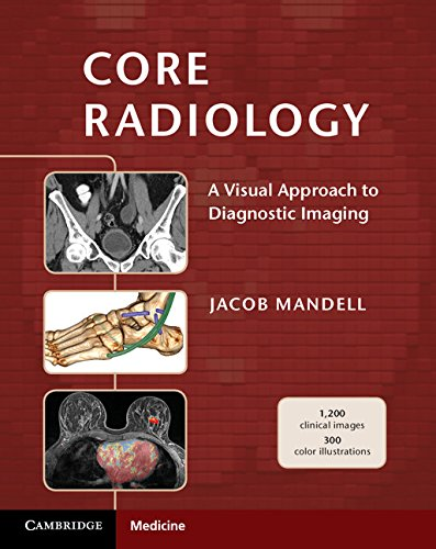 Compare Textbook Prices for Core Radiology: A Visual Approach to Diagnostic Imaging 1 Edition ISBN 9781107679689 by Mandell, Jacob