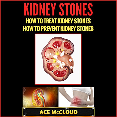 Kidney Stones audiobook cover art