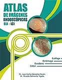Atlas de Imágenes Endoscópicas BLI/LCI (Spanish Edition)...