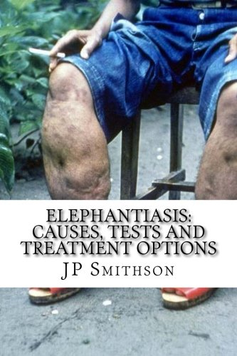 Elephantiasis: Causes, Tests and Treatment Options