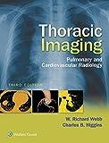 Thoracic Imaging: Pulmonary and Cardiovascular Radiology (English Edition)