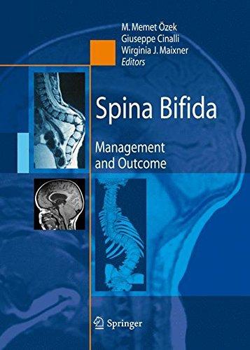 51ga5jcHZkL - Spina Bifida: Management and Outcome