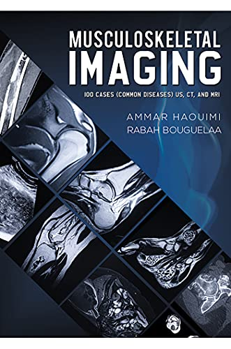 Musculoskeletal Imaging: 100 Cases (Common Diseases) US, CT and MRI (English Edition)