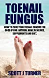 Toenail Fungus: How to Cure your Toenail Fungus for Good using Natural Home Remedies, Supplements...