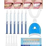 Kit de blanqueamiento dental Gel blanqueador, Juego de blanqueamiento dental, Limpieza dental, Kit blanqueador casero reutilizable para dientes blancos, Sistema de blanqueamiento dental