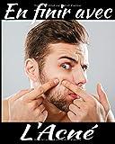 En finir avec l'acné: Gérez votre acné au quotidien avec les suivis des symptômes, de la diététique, des traitements, de l'intensité de la douleur etc... 8X10, 120 pages