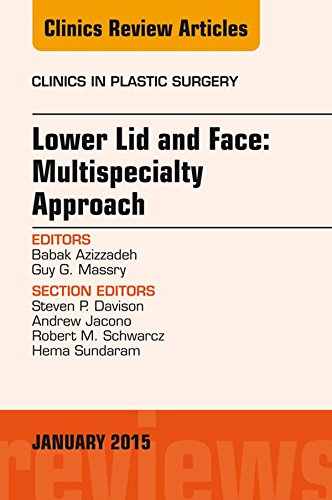 Image OfLower Lid And Midface: Multispecialty Approach, An Issue Of Clinics In Plastic Surgery, E-Book (The Clinics: Surgery) (Eng...