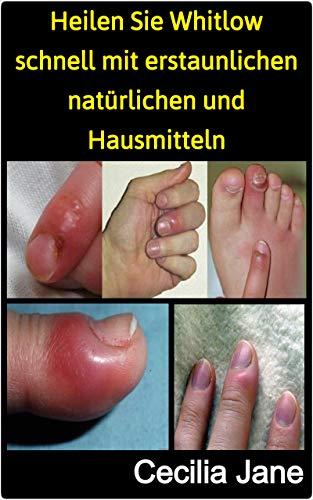 Heilen Sie Whitlow schnell mit erstaunlichen natürlichen und Hausmitteln (German Edition)