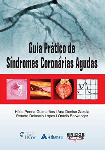 Guia prático de síndromes coronárias agudas
