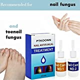 Zoom IMG-1 fungo unghie antimicotico trattamento fungine