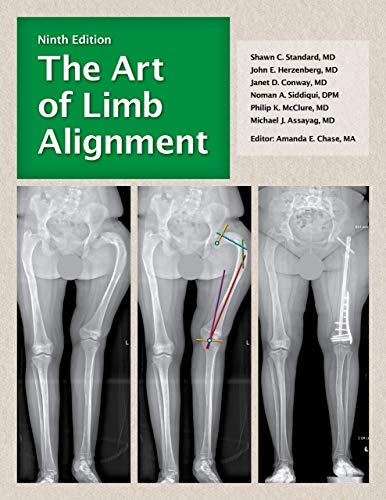 The Art of Limb Alignment, Ninth Edition - Original PDF