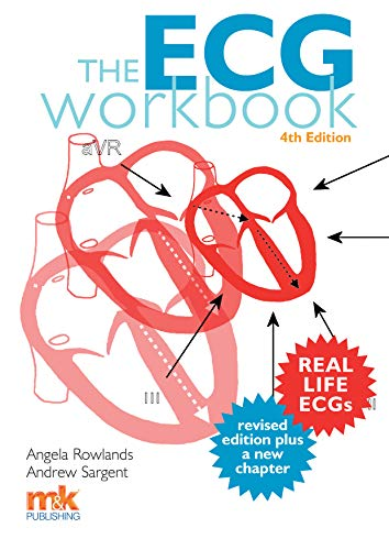 The ECG Workbook 4/ed