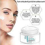 Zoom IMG-2 crema sbiancante anti macchie viso