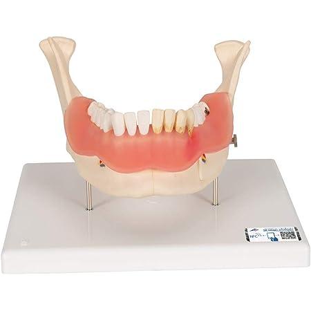歯科医院で人気の模型,虫歯や歯石,歯周炎など再現,根・神経・血管なども観察可能 - 歯と歯茎の疾患モデル - 3B Scientific