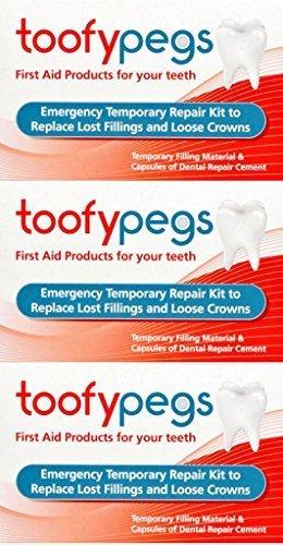 Toofypegs Noodreparatie voor vullingen en Crowns x 3 verpakkingen door Toofy Pegs