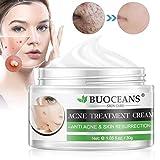 Acne Treatment, Acne Removal Cream, Pimple Treatment, Face Skin Repair Cream,...