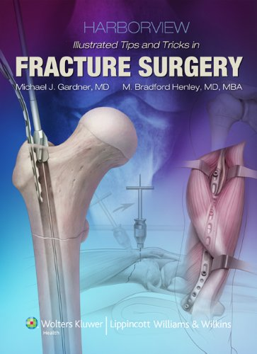 Harborview Illustrated Tips and Tricks in Fracture Surgery (English Edition)