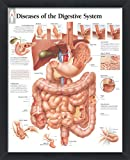 Diseases of the Digestive System Framed Medical Educational Informational Poster Diagram Doctors Office School Classroom 22x28 Inches