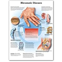 YQQICC リウマチ性疾患チャートポスター印刷ボディマップキャンバス壁の写真医学教育用家の装飾-55x70cmフレームなし