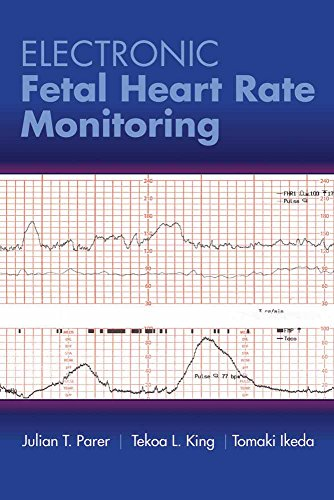 Electronic Fetal Heart Rate Monitoring: The 5-Tier System: The 5-Tier System