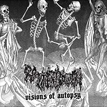 Visions of Autopsy