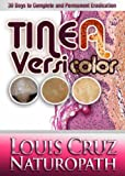 Tinea Versicolor - 30 Days to Complete Elimination (English Edition)