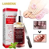 Nail Repair Essence Nail CareTreatment of Anti-Fungal Essence, Effective Against Nail Fungus, 12ML (1PCS)