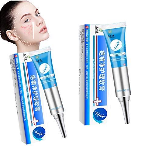 Acne Clear Blemish Removal Cream,20g Scar Gel Skin Repair Face Treatment Cream, Advanced Acne Scar Removal Cream (2 PCS)