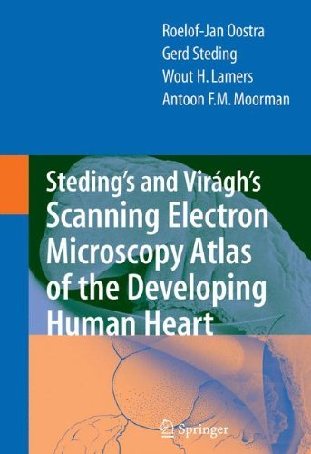 Steding's and Virágh's Scanning Electron Microscopy Atlas of the Developing Human Heart (English Edition)