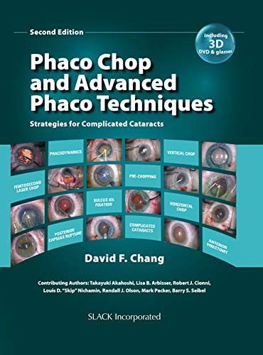 Phaco Chop and Advanced Phaco Techniques: Strategies for Complicated Cataracts, Second Edition (English Edition)