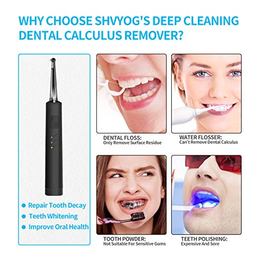 Electric Dental Calculus Remover with LED, High-Frequency Vibration Tooth Tartar Scraper for Teeth Calculus/Tartar/Dental Plaque/Smoke Stain Remover, Professional Teeth Polishing Cleaning Tools