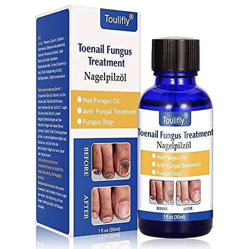Toenail Fungus Treatment, Funghi Unghie, Fungus Stop, Nail...