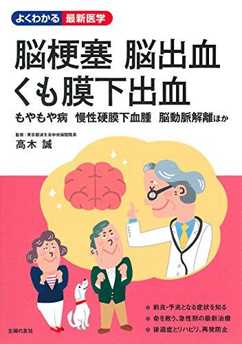 脳梗塞 脳出血 くも膜下出血 (よくわかる最新医学)