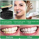 Immagine 1 wostoo polvere denti carbone attivo