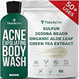 TreeActiv Acne Exfoliating Body Wash | Hydrating Cleanser Exfoliant with Sulfur, Jojoba Beads, & Kaolin Clay | Chest, Shoulder, Back, & Butt Pimple Treatment for Women, Men, Teen, & Adult | 50+ Uses