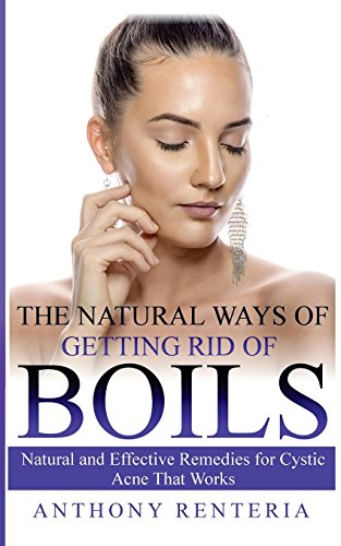 The Natural Ways of Getting Rid of Boils: Natural and Effective Remedies for Cystic Acne that Works