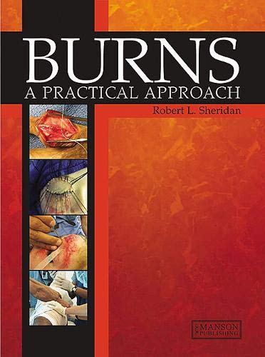 Burns (A Practical Approach to Immediate Treatment and Long Term Care)