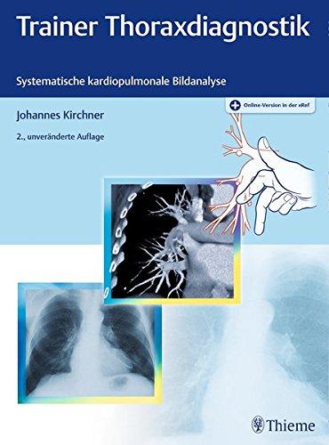 Trainer Thoraxdiagnostik: Systematische kardiopulmonale Bildanalyse