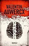 Remove par Auwercx