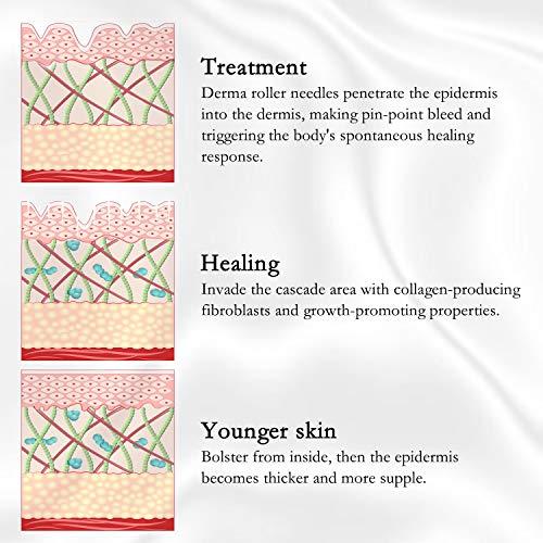 Dermaroller, 6 in 1 Micronadeln Derma Roller für Gesichtspflege mit Micro-Needling, aus Edelstahl Micronadeln, Dermaroller Gesicht für Anti Falten, Schwangerschaftsstreifen und Haarausfall