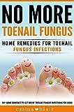 Toenail Fungus No More!: Home Remedies for Toenail Fungus Infections