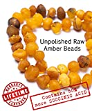 Latitata Amber Necklace - RAW Unpolished Baltic Amber Beads - Boost Immune System - Pain Relief Properties - GIA Certified Baltic Amber Necklace