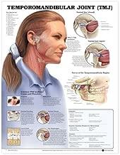 Temporomandibular Joint (TMJ) Anatomical Chart [Paperback] [2000] (Author) Anatomical Chart Company