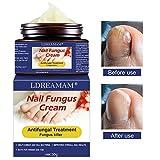 Tratamientos para uñas,Crema de uñas para pies Crema para el cuidado de la piel Crema de hongos para uñas Crema anti hongos para reparar las uñas