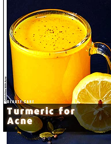 Turmeric for Acne: Celebrities With Acne (English Edition)