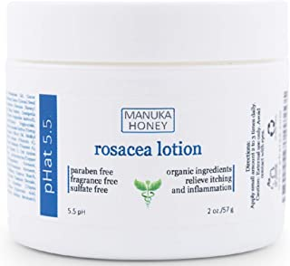 Rosacea Red Skin and Acne Cream - with Manuka Honey, Aloe Vera & Coconut Oil - Redness, Inflammation, Acne and Rosacea Relief - Paraben & Sulfate Free (2 oz)